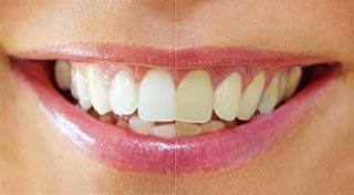Granbury cosmetic dentistry