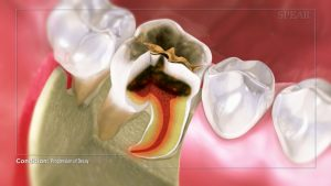 dental crown healing video