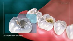 cracked and chipped teeth fillings with almalgam