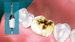 digitally manufactured crowns in Granbury TX - video showing crown implant process