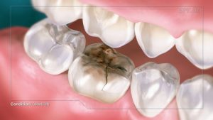 cracked tooth repair instructional video
