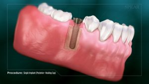 single dental implant cap video