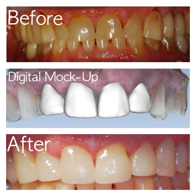 Same day Crown, Dental Veneers, at our dental office in Granbury, Texas